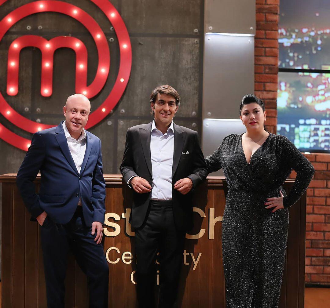 Jurado de MasterChef Chile muestra cómo quedó tras operarse la papada