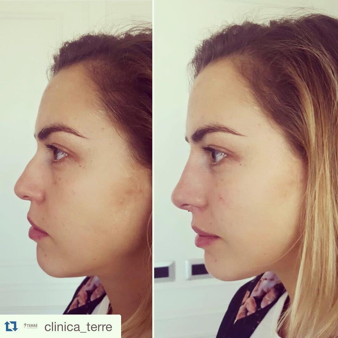como respingar la nariz sin cirugia