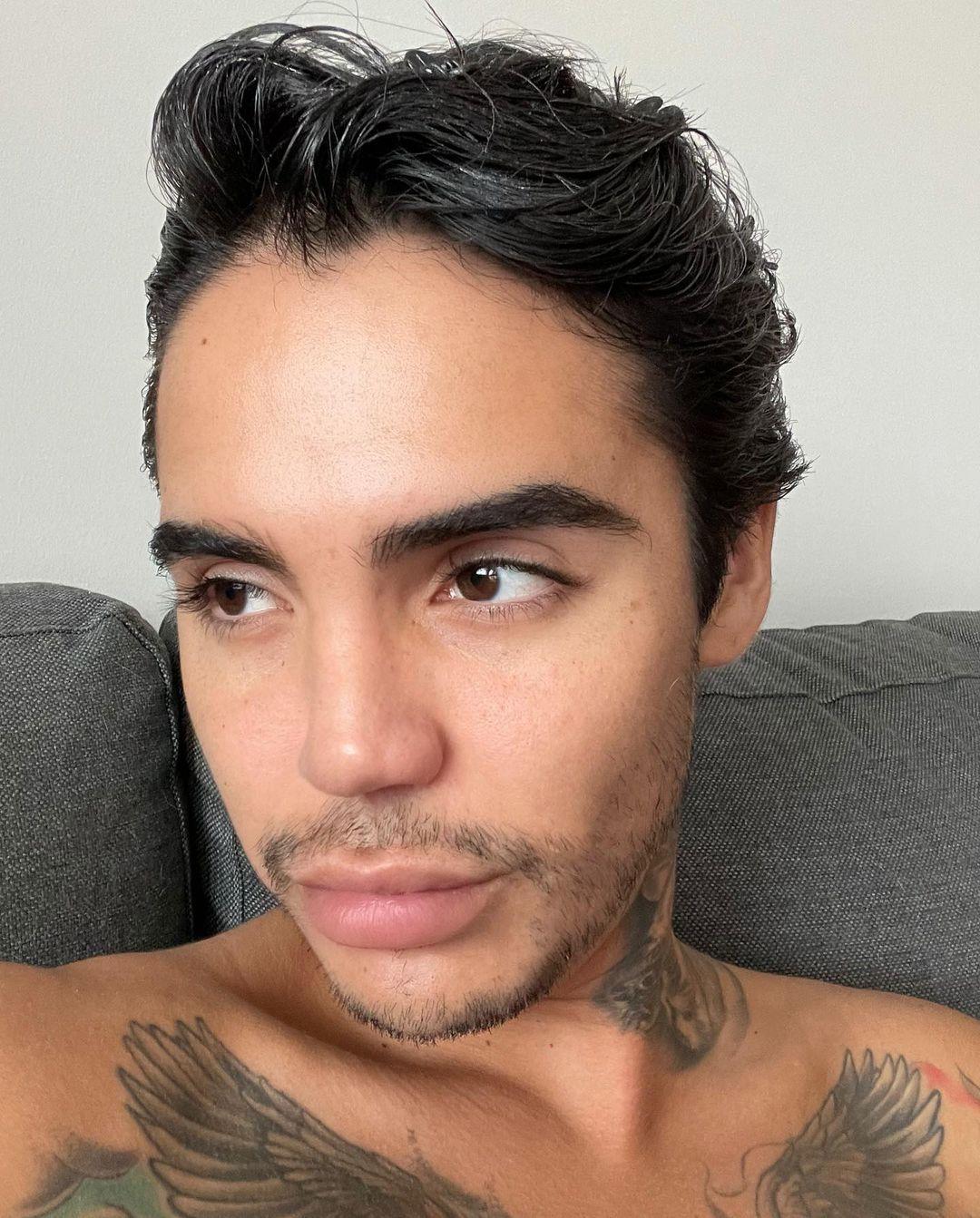 Leo Méndez Jr. se operó la nariz luego de sufrir golpiza