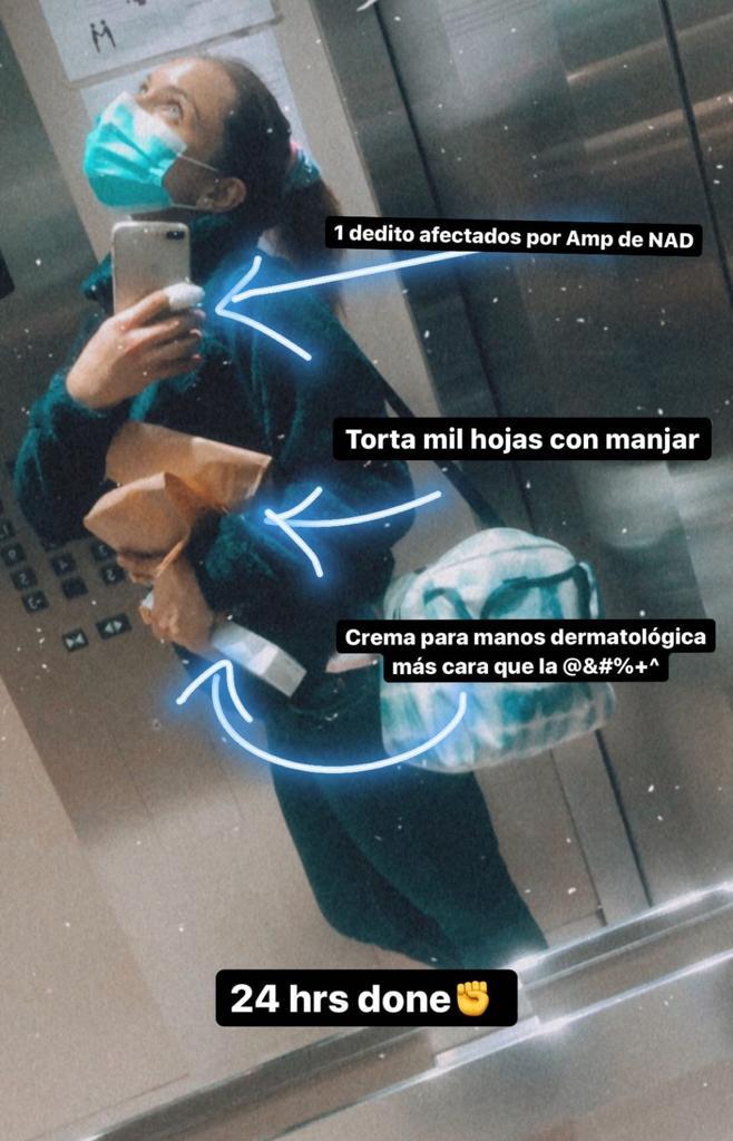 Ángela Duarte sorprende al mostrar sus particulares manos