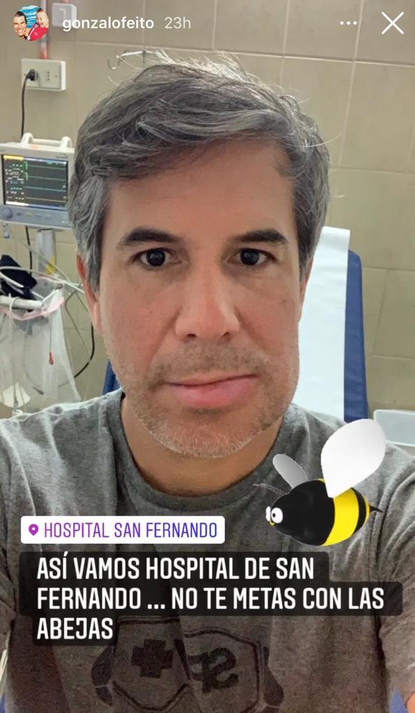 Gonzalo Feito muestra cómo quedó su rostro tras picadura de abeja