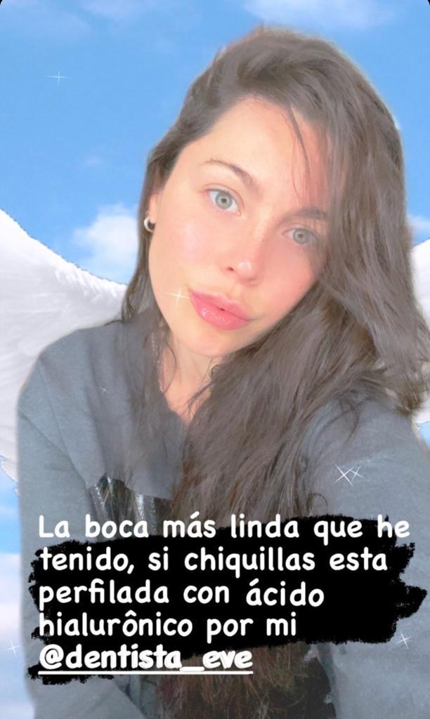 Daniela Aránguiz muestra su boca tras retoque