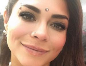 Antonella Ríos muestra cómo cambió su rostro al sacarse las bolas de Bichat