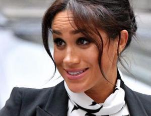 Mujer gastó millones de pesos en cirugías para ser igual a Meghan Markle y así quedó