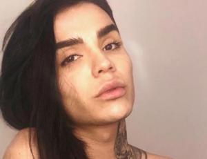 ¿Leo Méndez Jr aumentó el tamaño de sus labios?