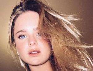 """Inna Moll muestra su rostro con acné: """"Nuestras imperfecciones nos hacen perfectos"""""""