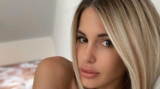 Gala Caldirola muestra nuevo procedimiento estético en su cara