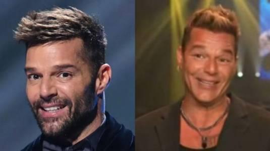 Ricky Martin luce irreconocible tras supuesto retoque en su rostro
