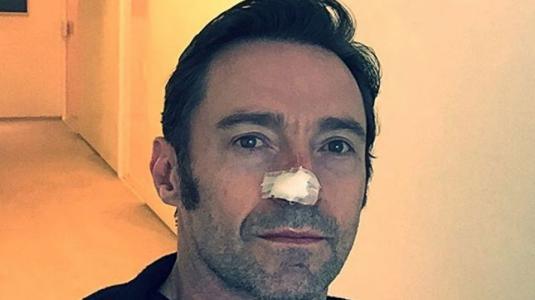 Hugh Jackman se sometió por sexta vez a operación de cáncer de piel