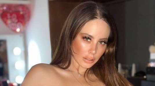 Ignacia Michelson revela que sufre alopecia y muestra su calvicie