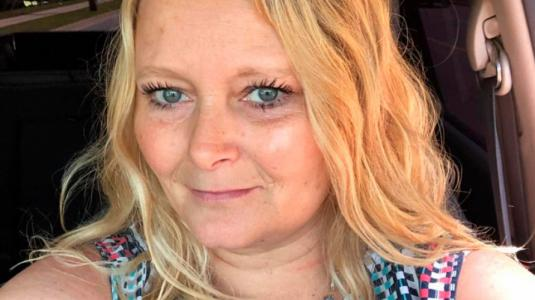 Mujer sufre tras hacerse microblading que arruinó sus cejas