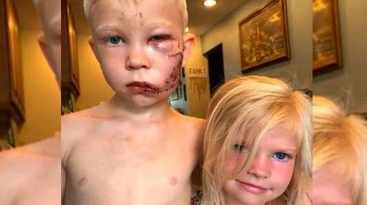 Un verdadero héroe: Niño salva a su hermana de feroz ataque de un perro