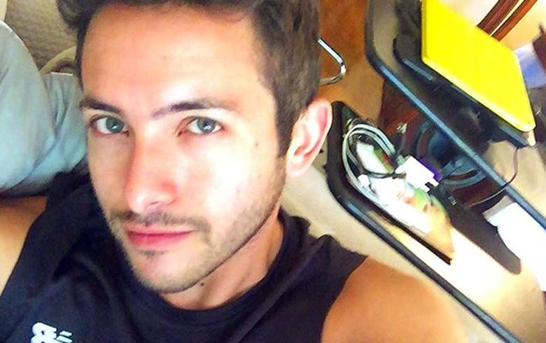 Hugo Valencia se retocó el rostro en vivo
