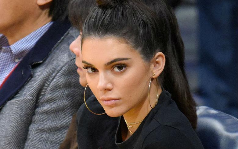 Perro de Kendall Jenner mordió a una niña