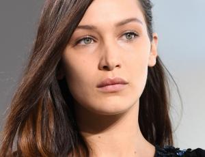 Foto evidencia retoques faciales en Bella Hadid