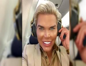 """El """"Ken humano"""" se fue de fiesta, se emborrachó y terminó sin dientes"""